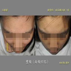 豐頰,臉頰凹陷,玻尿酸,微晶瓷,喬雅登,voluma,juvederm,水微晶,安緹斯,微整形,微整型,高雄皮膚科