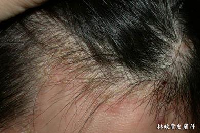 脂漏性皮膚炎,皮屑芽孢菌,頭皮屑,頭皮癢,皮屑芽孢菌,脂漏性乾癬,