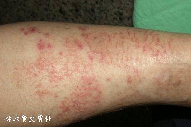 ,冬季癢,冬季濕疹,乾燥性皮膚炎,缺脂性皮膚炎,皮膚乾,乾癢,