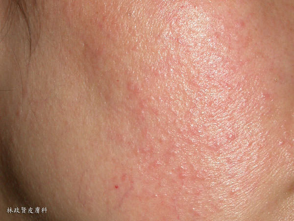 酒渣,酒糟,玫瑰斑,臉潮紅,皮膚敏感,敏感肌,臉紅,臉熱,