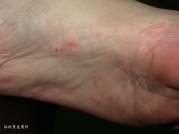 足癬,香港腳,黴菌感染,汗皰疹,皮癬菌,發黴,發霉,