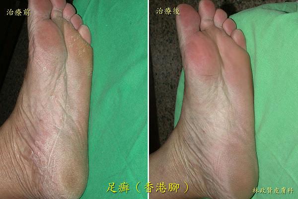 足癬,香港腳,黴菌感染