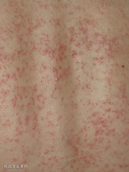 汗疹,痱子,紅色汗疹