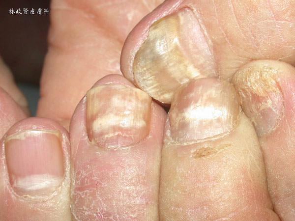 甲癬,灰指甲,灰趾甲,黴菌感染