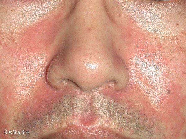 脂漏性皮膚炎,皮屑芽胞菌