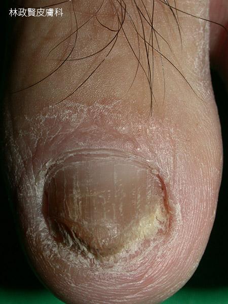 香港腳、足癬