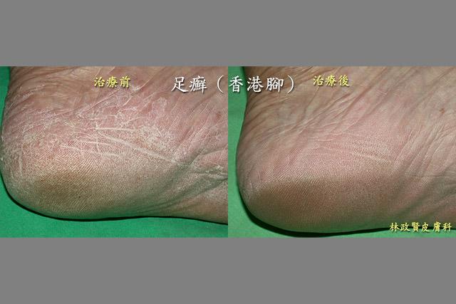 香港腳、足癬、灰指甲、灰趾甲