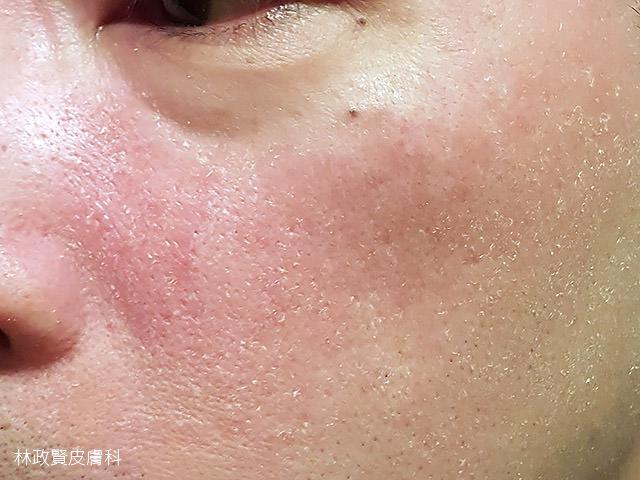 脂漏性皮膚炎,內油外乾