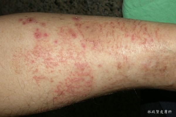 冬季癢,缺脂性皮膚炎