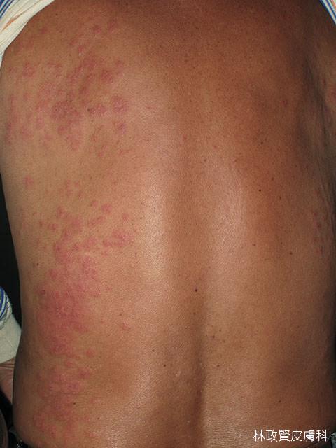 毛毛蟲皮膚炎.caterpillar dermatitis