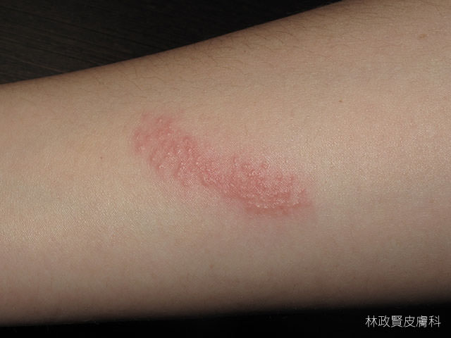 水母皮膚炎,jellyfish dermatitis