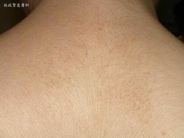 類澱粉沈澱症,皮膚癢