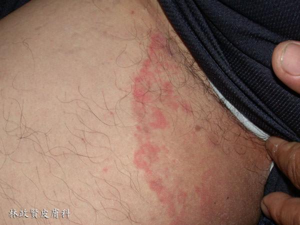 股癬,胯下癢,黴菌感染