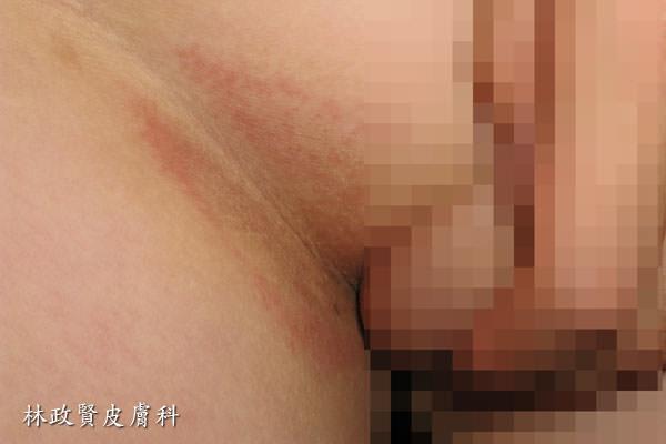 對磨疹,intertrigo,股癬