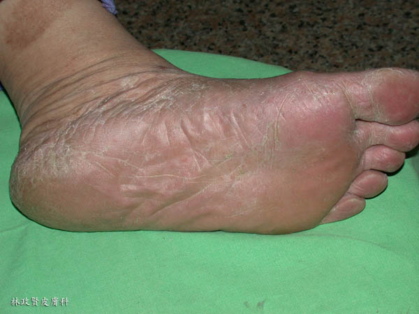 手癬,黴菌感染,足癬,香港腳