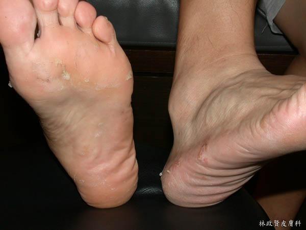 黴菌感染,甲癬,灰指甲,灰趾甲