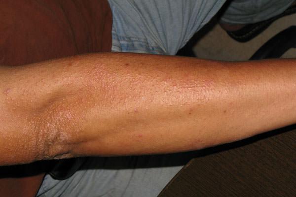 接觸性皮膚炎,鎳皮膚炎,金屬皮膚炎,皮膚過敏