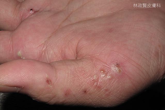 汗疱疹,汗皰疹,pompholyx,疥瘡