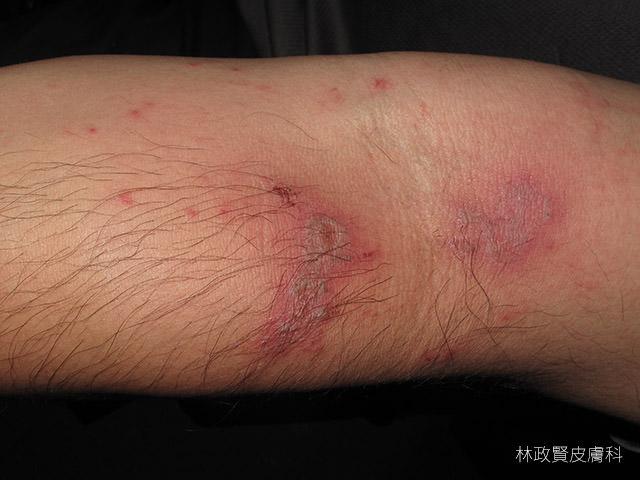 隱翅蟲皮膚炎,paderous,dermatitis