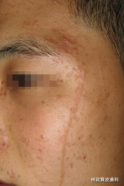扁平疣,脂漏性角化症,老人斑