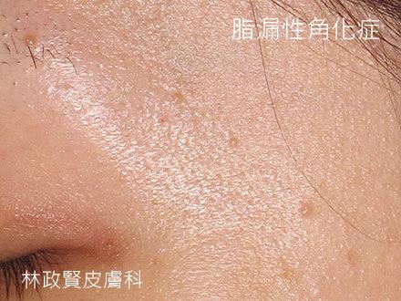 脂漏性角化症,扁平疣,老人斑