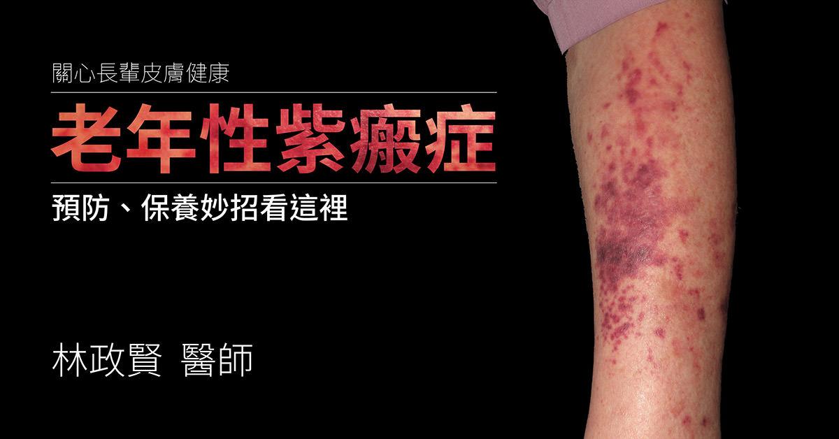 senile purpura,老年性紫瘢症,紫斑症,actinic purpura