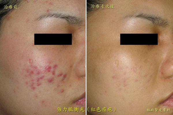 紅痘疤,除痘疤,色素沉澱,色素沈澱,蟹足腫,疤痕,強力脈衝光