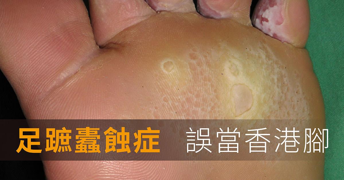 點狀角質層分離症,足蹠蠹蝕症,香港腳,足癬,