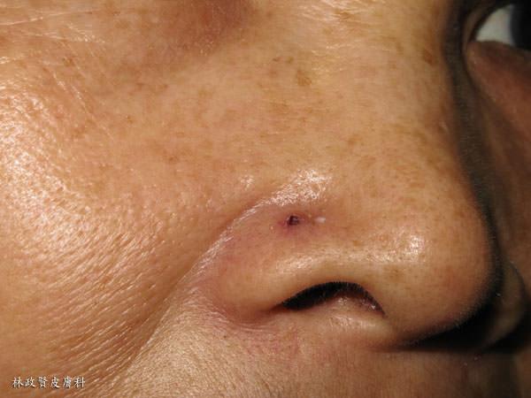 皮膚癌,基底細胞癌