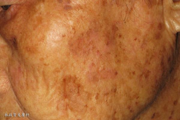 日光性角化症,皮膚癌,濕疹,