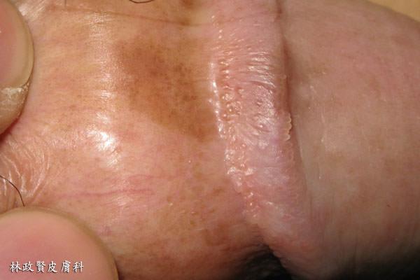 陰莖珍珠樣丘疹,pearly penile papulosis,PPP