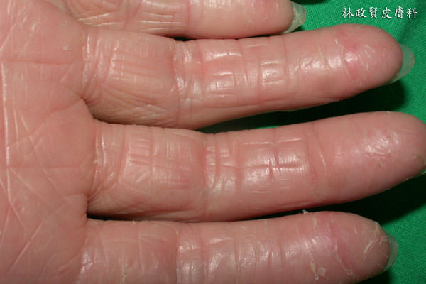 富貴手,主婦濕疹,主婦溼疹,KTPP,手部濕疹