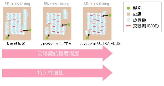 juvederm,喬雅登,玻尿酸,微整形,微整型