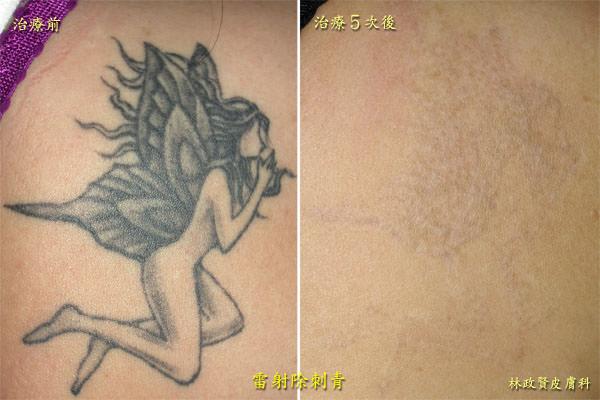 雷射除刺青,銣雅各雷射,Nd:YAG,高雄,皮膚科
