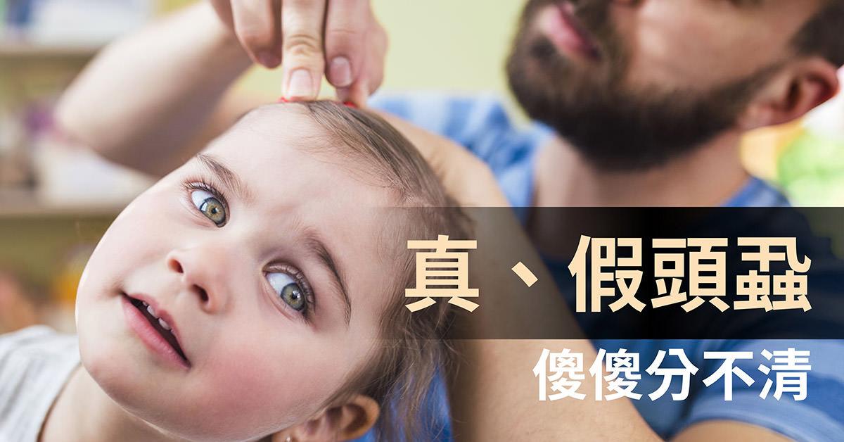 頭蝨,假性頭蝨,pediculosis,capitis,hair,cast,pseudonit,nit