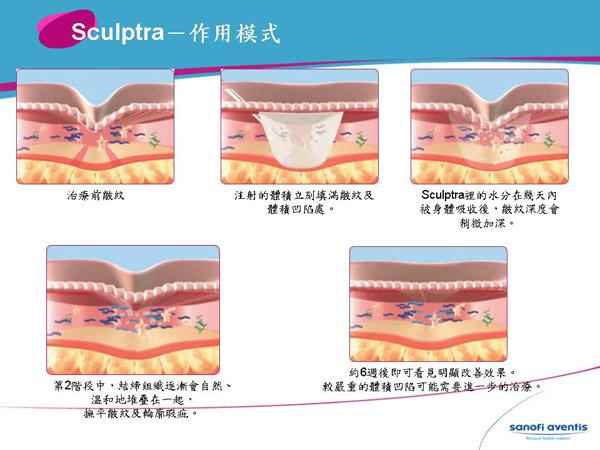Sculptra,3D聚左旋乳酸,舒顏萃,微整形,微整型,返老還童,Poly-L-lactic acid,PLLA,液態拉皮,液體拉皮,童顏針,3D液態拉皮,3D童顏針