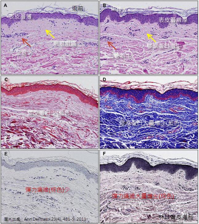 妊娠紋,飛梭雷射,電波拉皮,3D變頻飛梭雷射,1550,微針滾輪,極速飛針,生長紋,萎縮紋