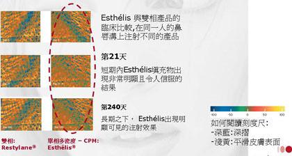安緹斯,安提斯,安緹絲,anteis,esthelis,玻尿酸注射,微整形,微整型