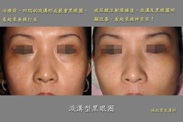 淚溝,黑眼圈,玻尿酸注射填補,微整形型,高雄皮膚科,累溝,喬雅登,安緹斯,anteis,esthelis,touch,vital,