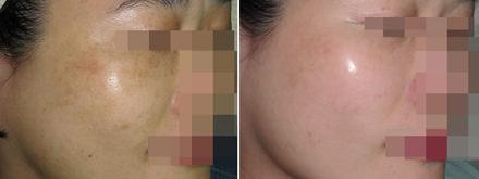 肝斑,黑斑,孕斑,黃褐斑,三合一退斑藥膏,美白,傳明酸,防曬