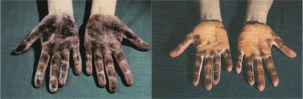 手汗症,腋下多汗症,狐臭,旋轉刀手術,肉毒桿菌素,botox