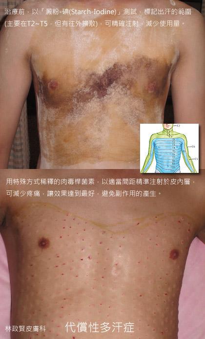 肉毒桿菌素,botox,dysport,xeomin,手汗症,腋下多汗症,狐臭,小刀口旋轉刀手術,