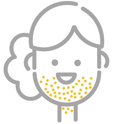 青春痘,粉刺,病因,痤瘡,acne