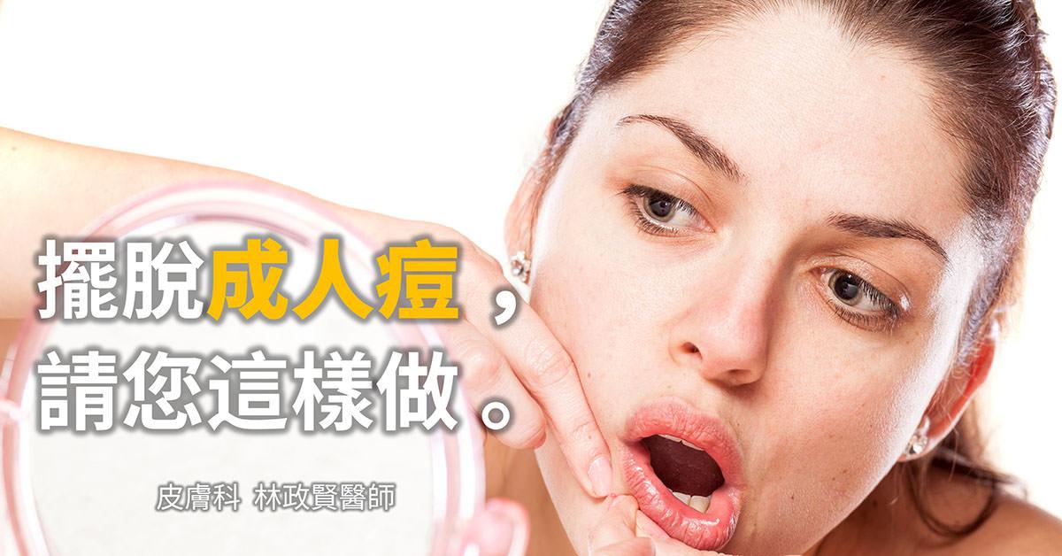 青春痘,痘痘,痤瘡,成人痘,成年痘,內分泌失調,荷爾蒙療法,月經不規則