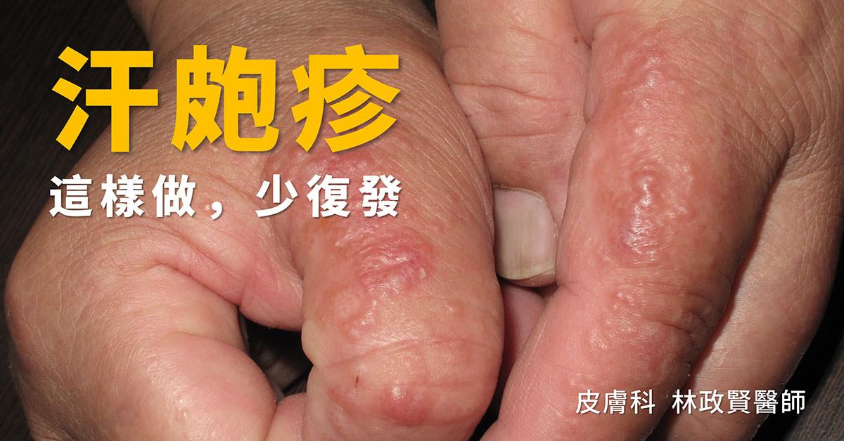 汗皰疹,汗疱疹,pompholyx,dyshidrotic eczema,手部濕疹,富貴手