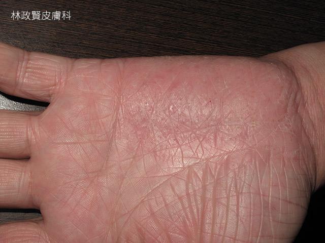 汗皰疹,汗疱疹,pompholyx,dyshidrotic eczema,手部濕疹