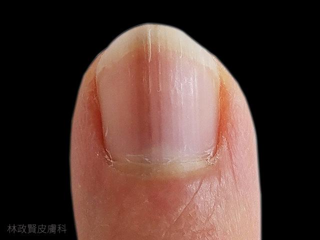縱向黑甲症,惡性黑色素瘤,皮膚癌,指甲病變,melanoma,longitudinal melanonychia