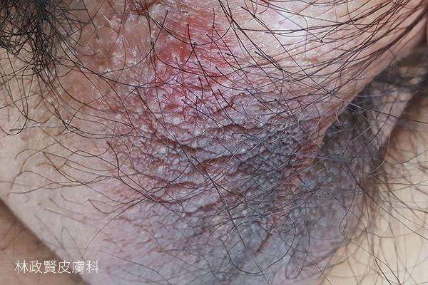 陰囊濕疹,陰部搔癢,scrotal,eczema,scroti,慢性濕疹,神經性皮膚炎,慢性單純苔癬