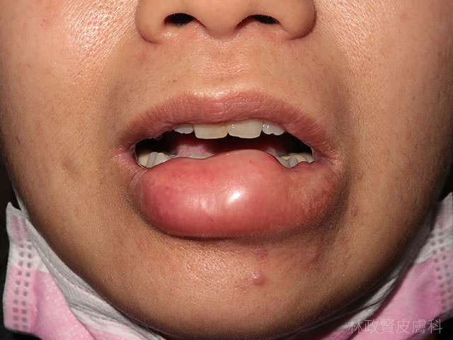 蚊蟲叮咬,小黑蚊,跳蚤,螞蟻,禽蟎,水泡,丘疹,斑塊,結節,蚊子,蚊蟲