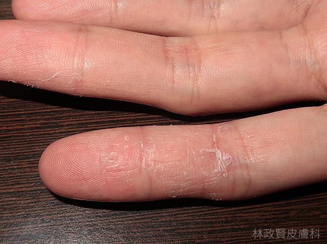 汗皰疹,汗疱疹,pompholyx,dyshidrosis,dyshirotic,eczema,hand,dermatitis,富貴手,手部濕疹,溼疹